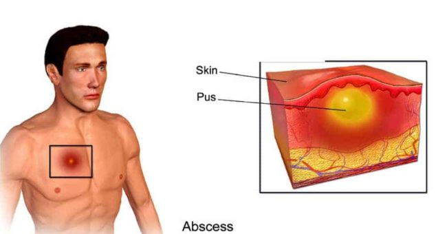Abscess: How Long Does it Take for an Abscess to Heal?